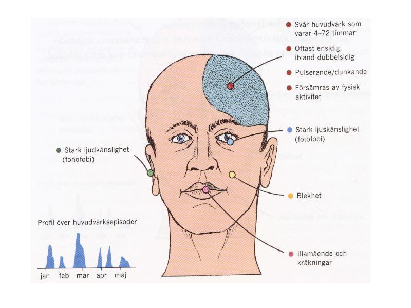 migrän med synbortfall