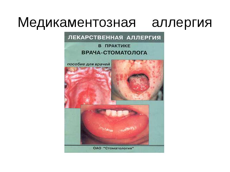 Вакцина из спермы мужа от аллергии