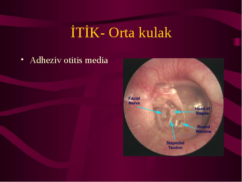 otitis media research paper Treatment of acute otitis media in children under 2background recommendations vary regarding immediate antimicrobial treatment versus watchful waiting for children younger than 2 years of age with acute otitis mediaa placebo-controlled trial of antimicrobial treatmentbackground the efficacy.