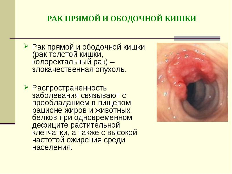 Лимфома ходжкина (краткая информация) - kinderkrebsinfo лимфома 4 стадии форум