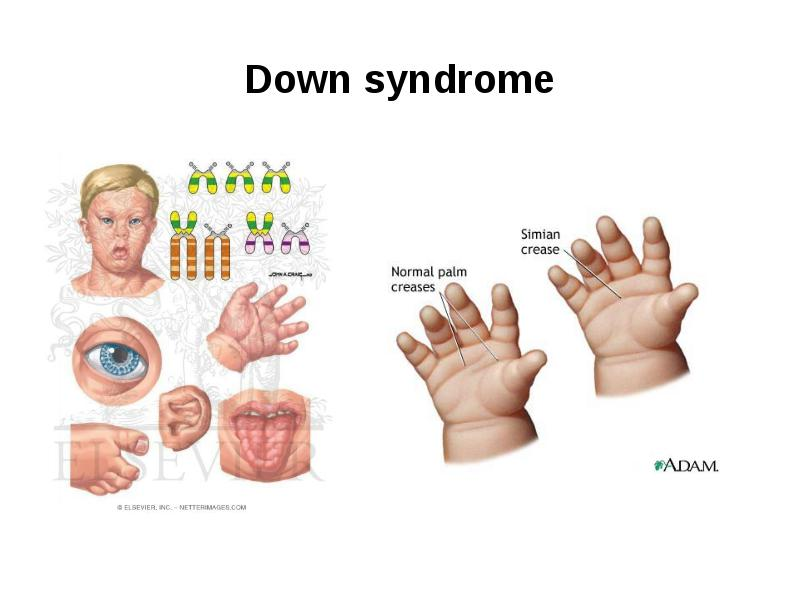Nice Down Syndrome Anatomy Photos Anatomy And Physiology Biology